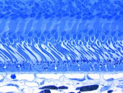 Ocular Pathology | Ocular Services on Demand